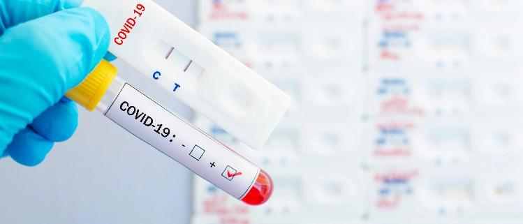 Test-covid-farmacia